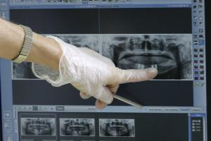 Criados novos implantes a pensar nos mais velhos