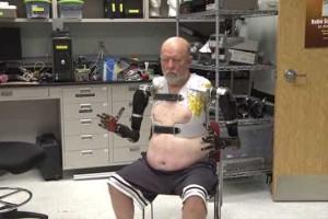 Tecnologia 'devolve' braços a homem 40 anos depois