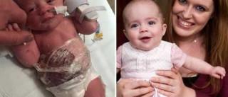 Médicos usam película aderente para salvar bebé com doença rara