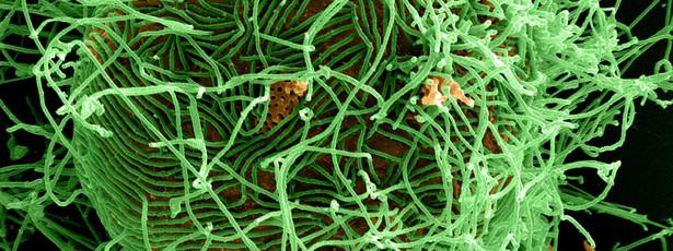 Investigadores criam teste que deteta Ébola em meia hora