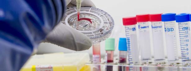 Fatores genéticos determinarão reação do organismo ao Ébola