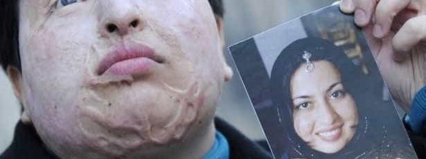 Atirou ácido à cara de um homem. Foi condenado a ficar sem olhos