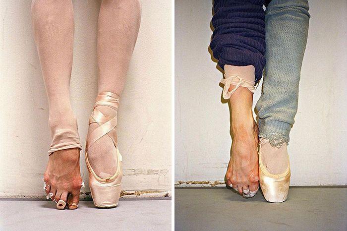 O sofrimento que as pontas de ballet escondem