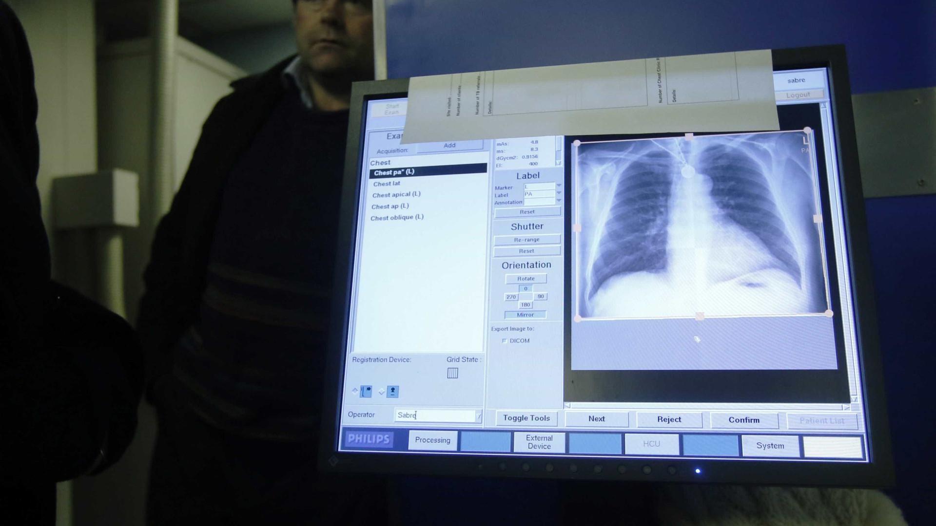Duas novas drogas podem curar todas as formas de tuberculose