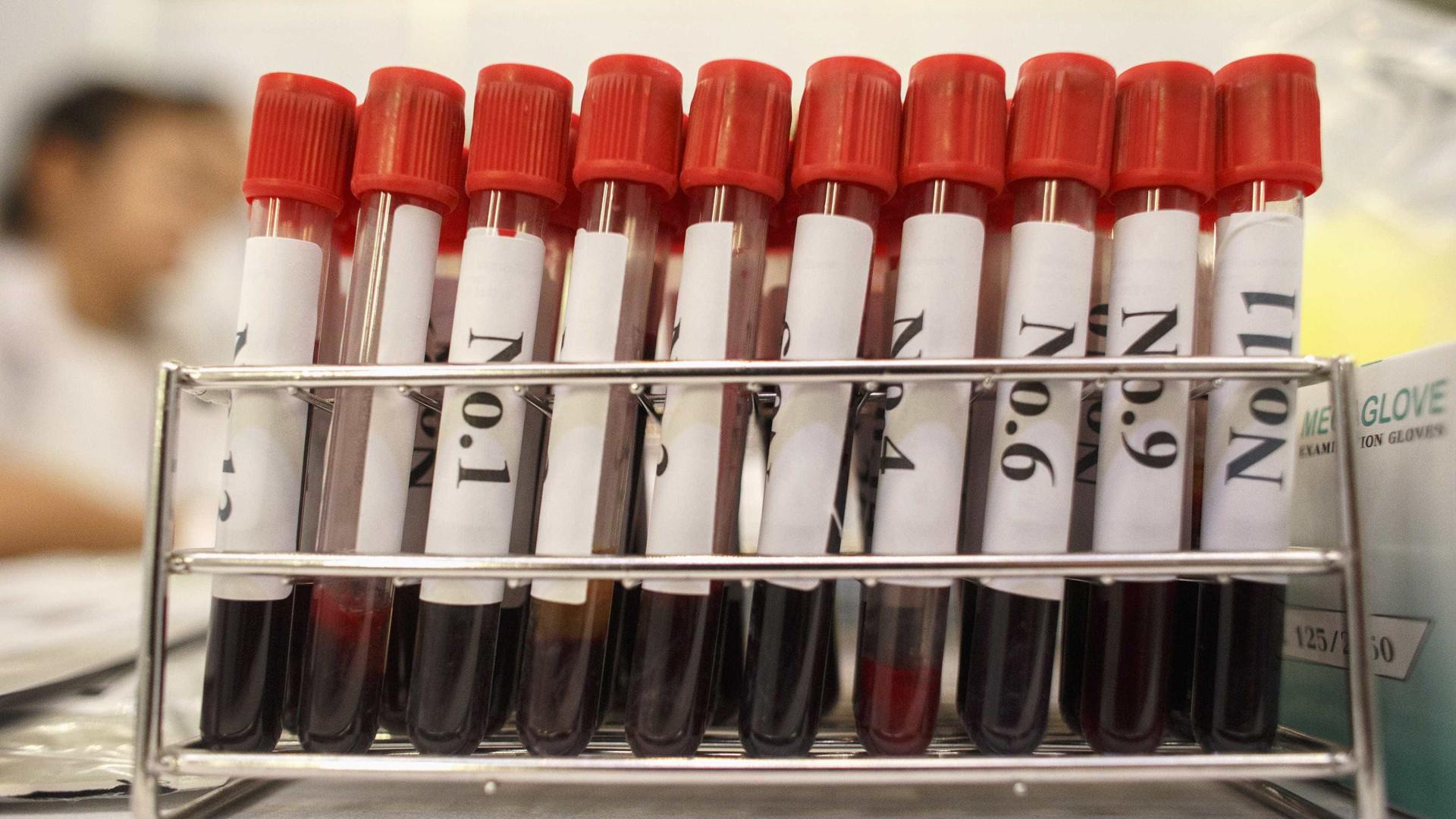 DGS emite normas sobre medicamento que previne infeção de VIH