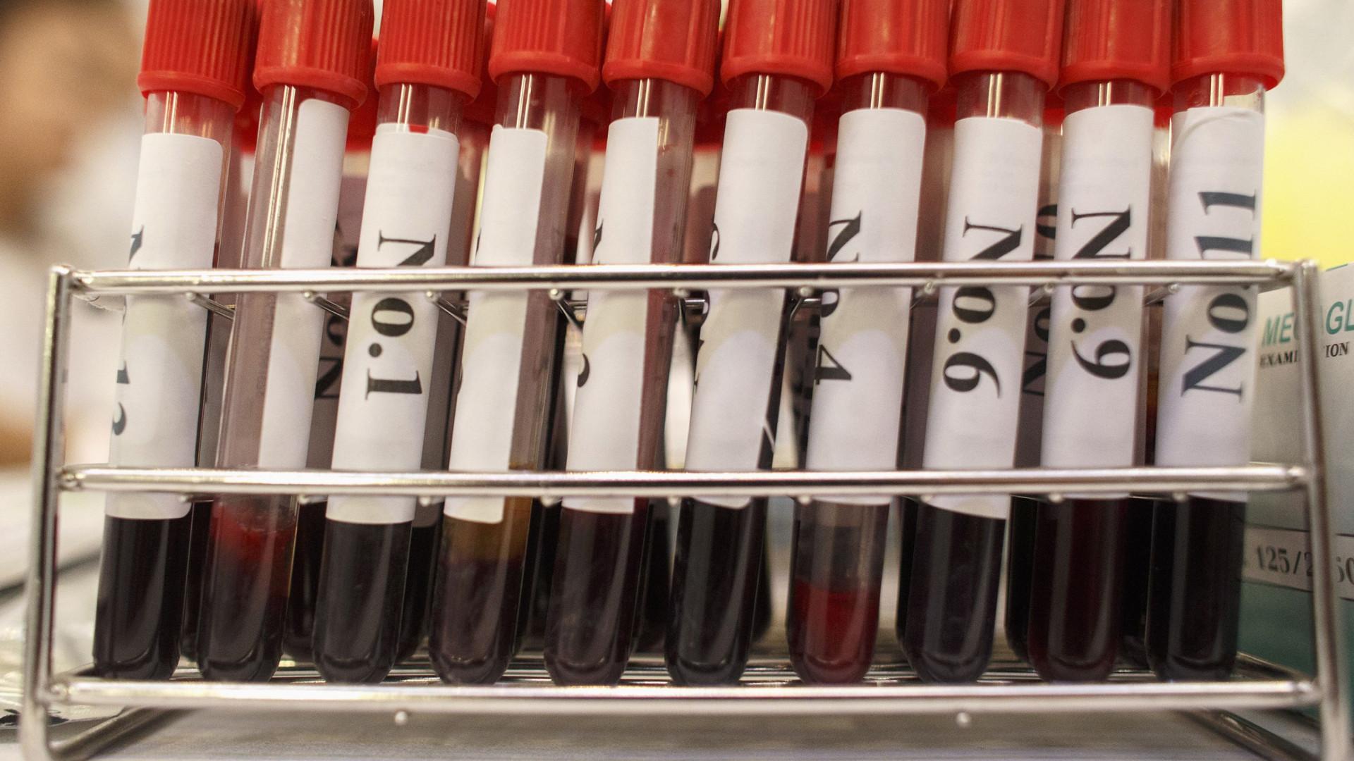 Legionella poderá ser transmitida pessoa-a-pessoa