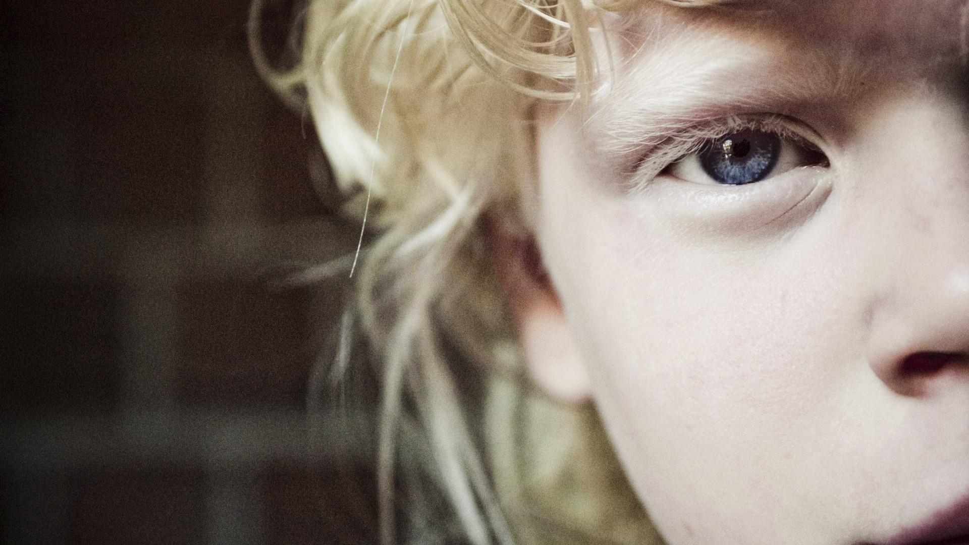Vítimas da superstição. Hoje é dia de falar de albinismo (e é urgente)