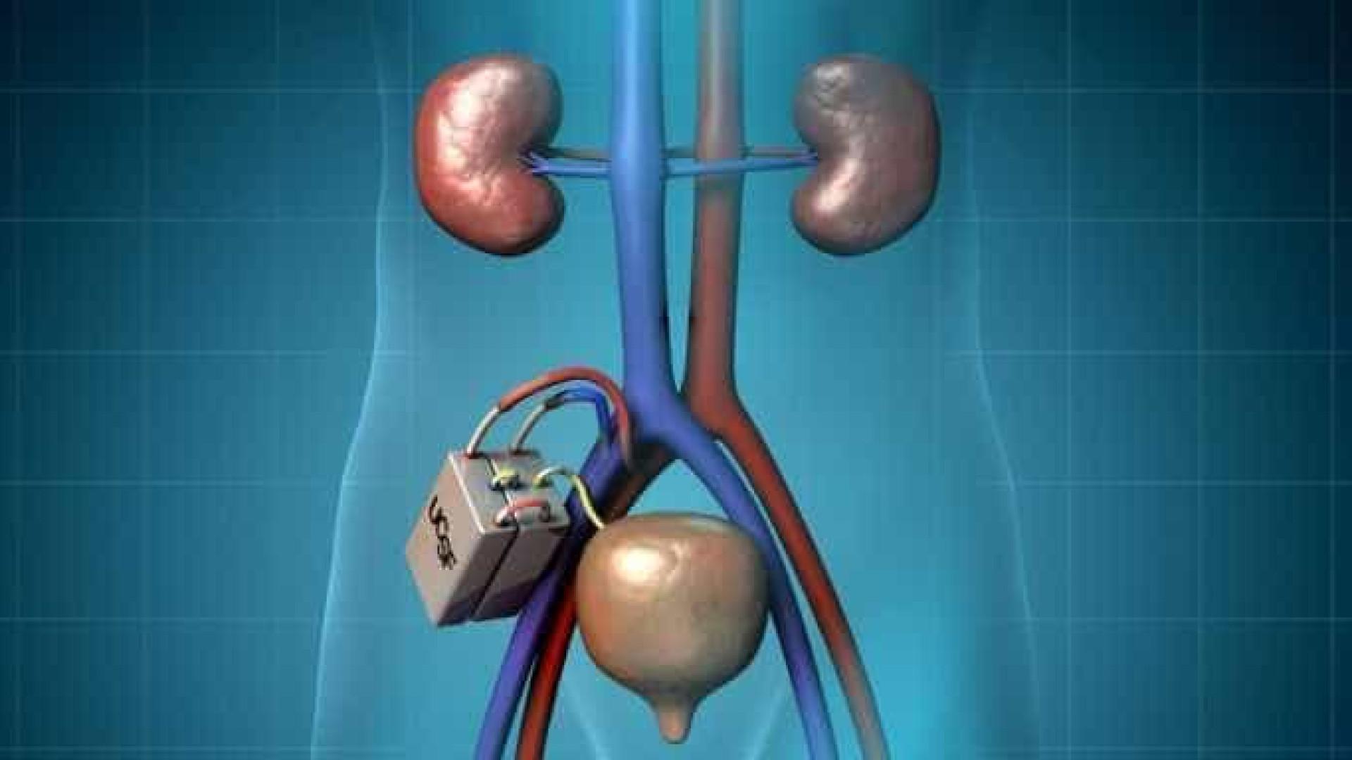 Transplante do primeiro rim artificial será em 2017