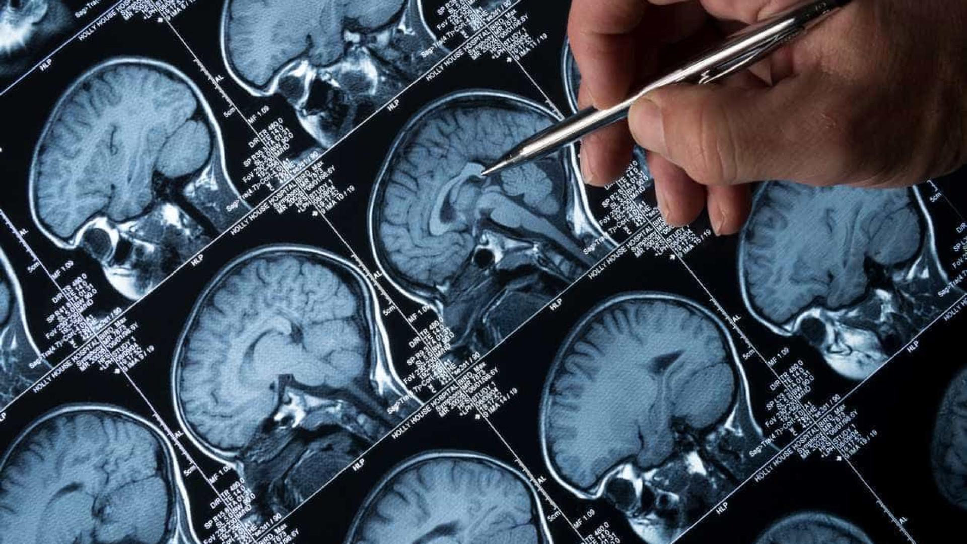 Descoberta função de estruturas no cérebro relacionadas com epilepsia