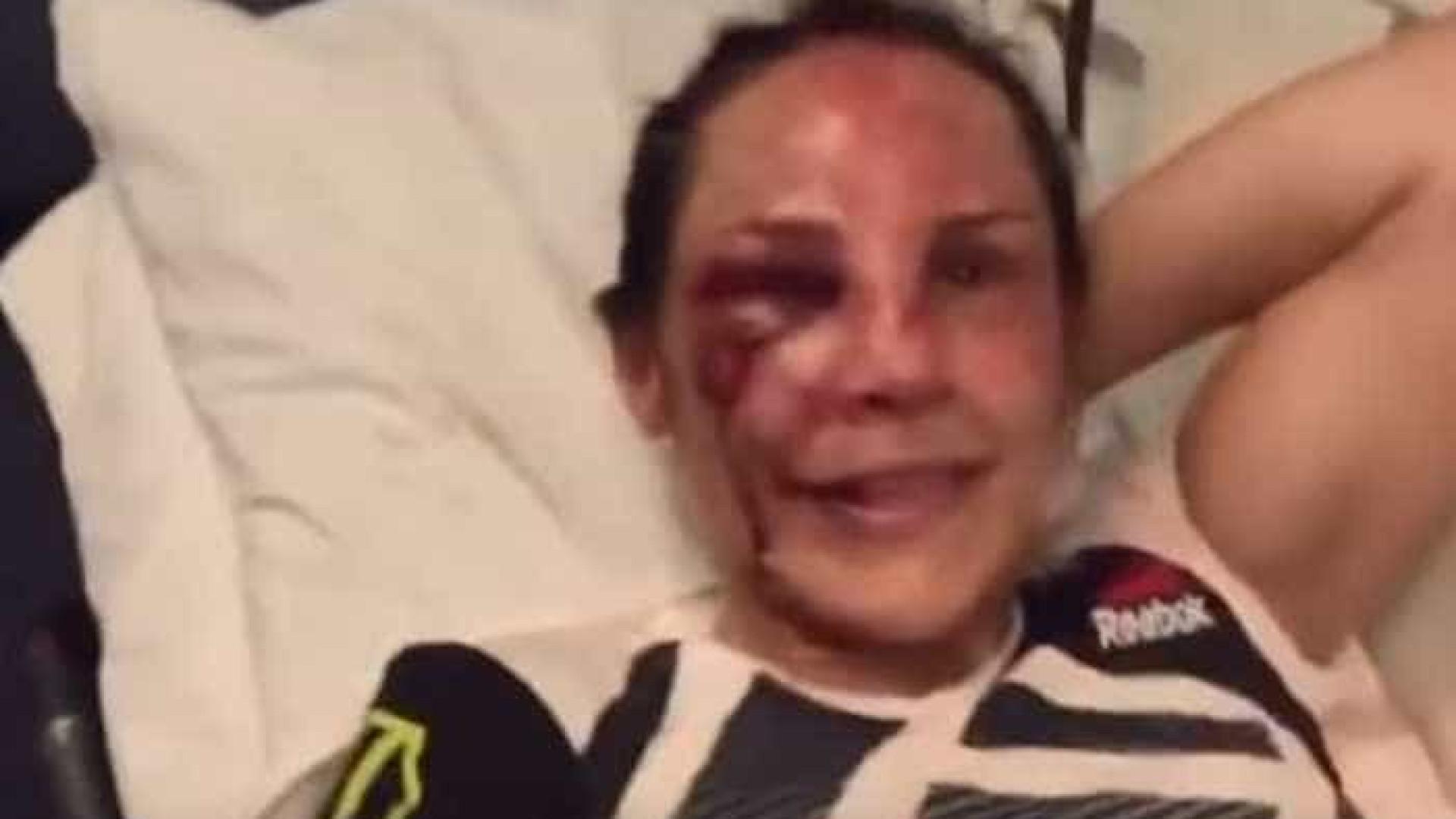 Lutadora de UFC ficou neste estado e teve de ser levada para o hospital