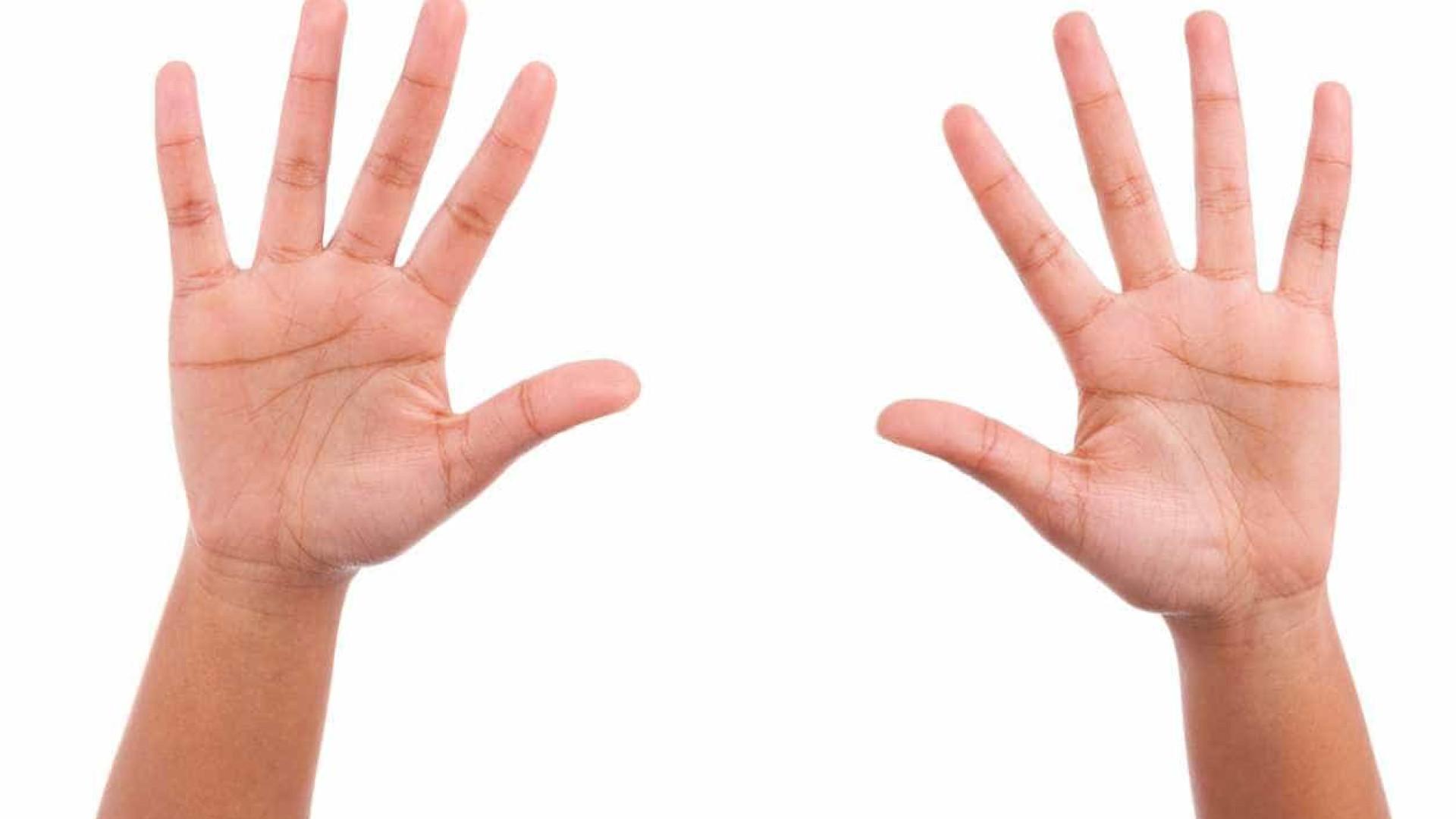 Afinal, porque é que temos linhas na palma das mãos?