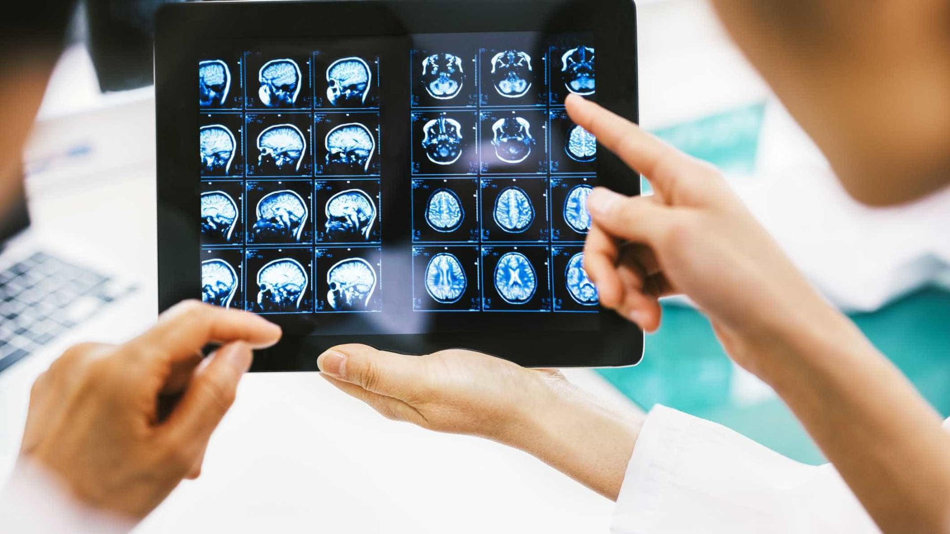 Novo passo dado na investigação para 'atacar' tumores cerebrais