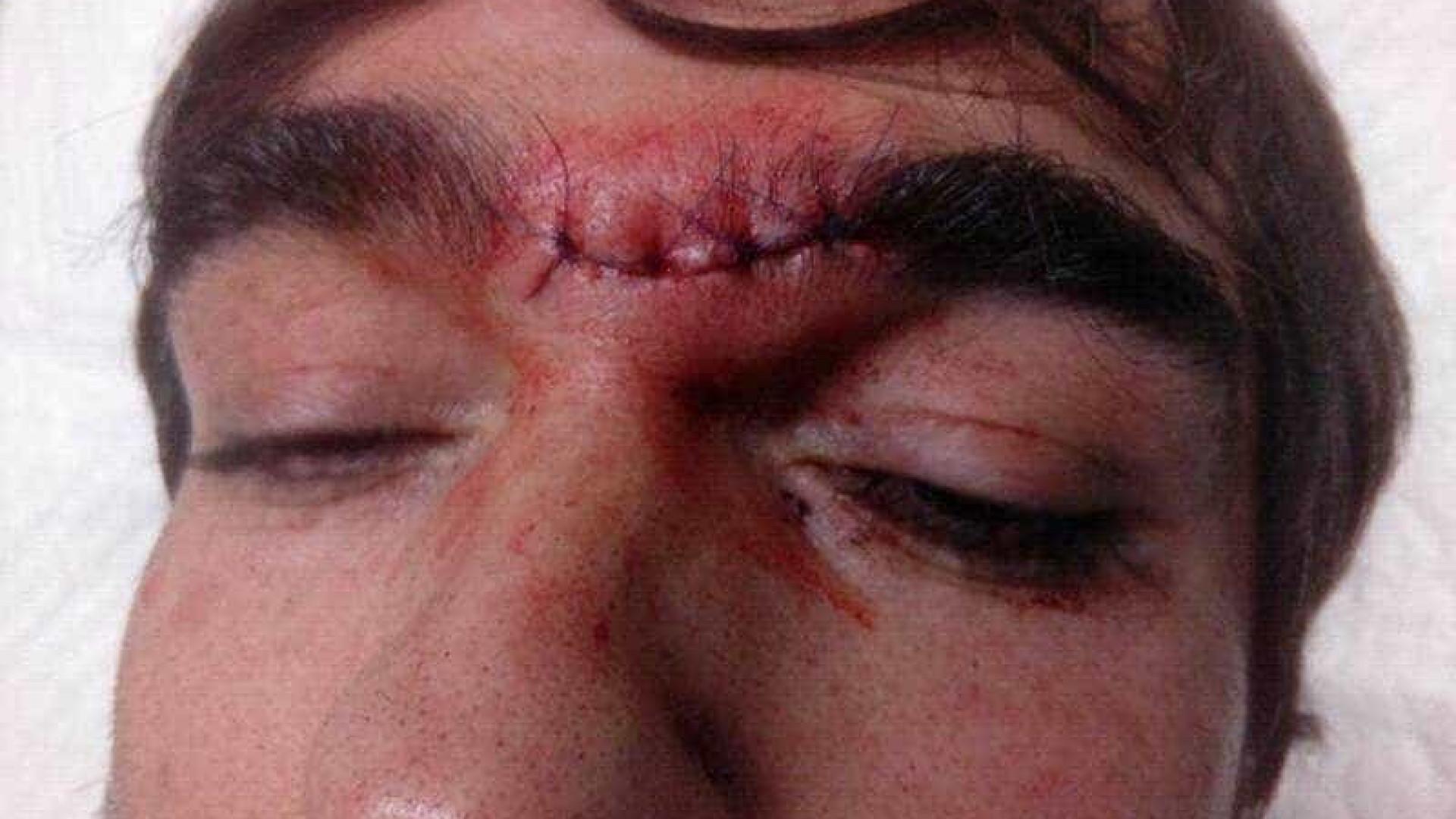 Vídeo de PSP a dominar homem com perturbação mental gera polémica
