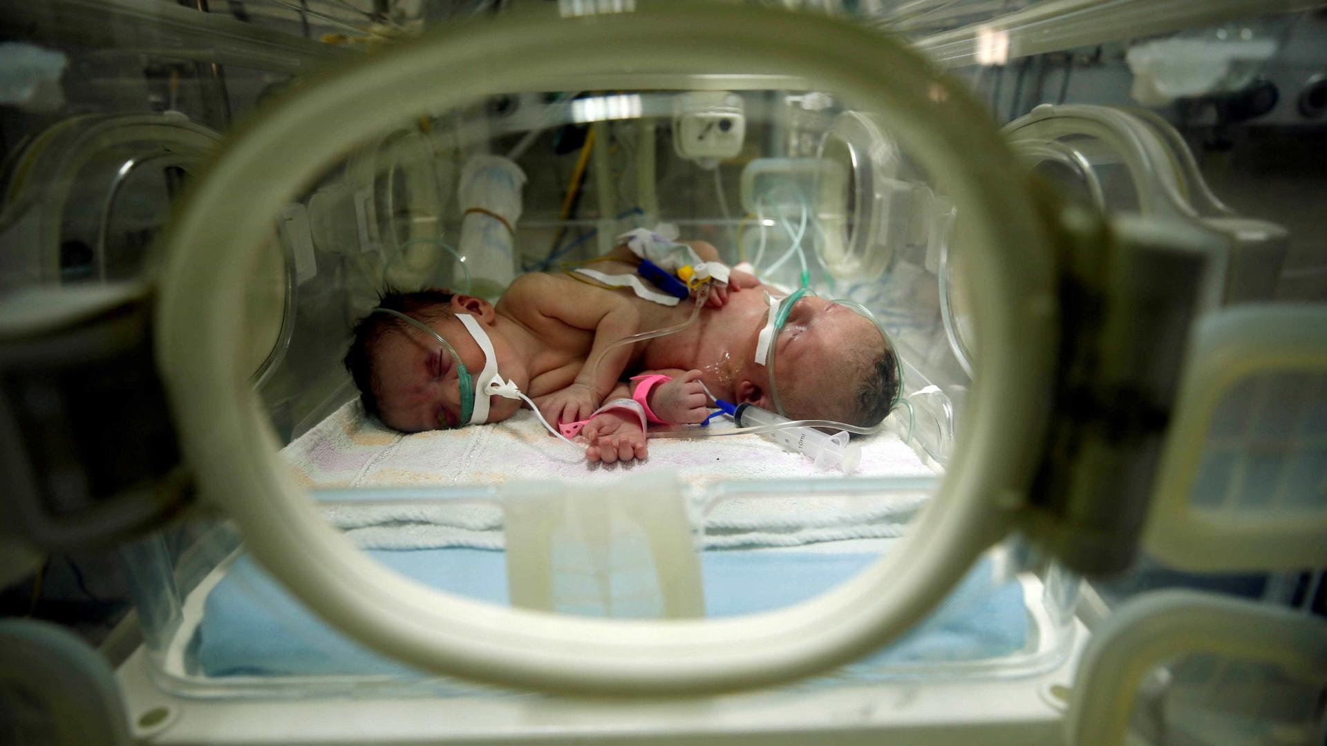 Farah e Hanee, gémeas siamesas de Gaza, separadas com êxito