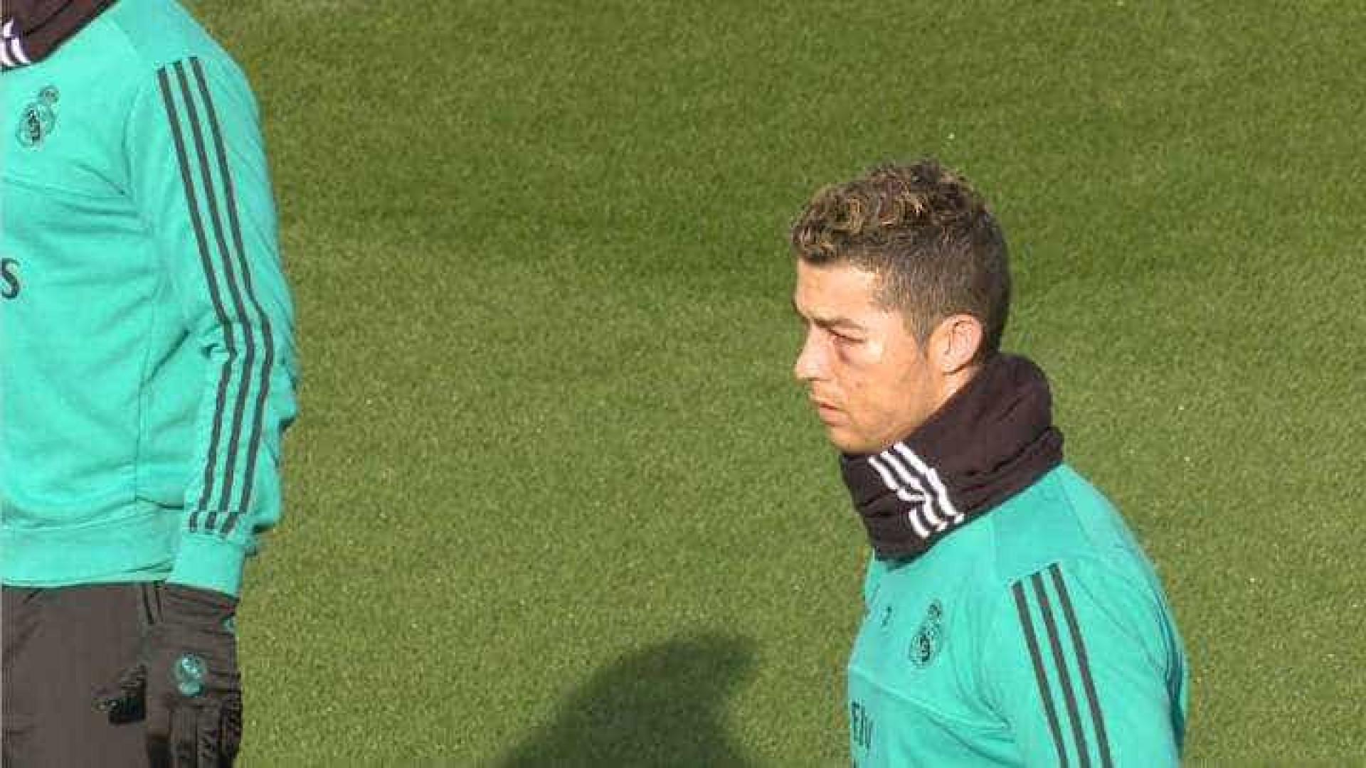 Ronaldo já treinou sem limitações mas... com o olho negro