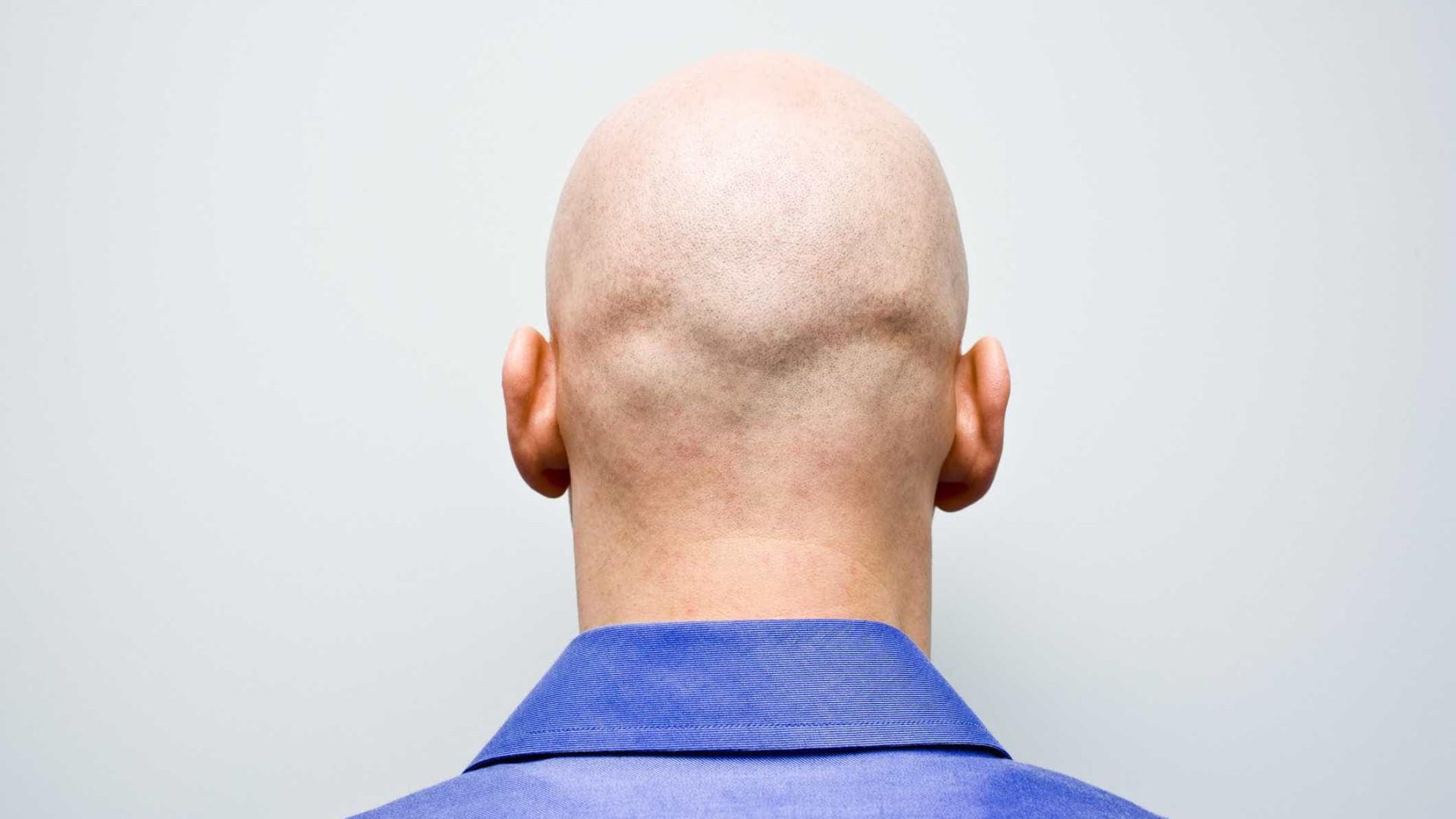 Mitos e verdades sobre os carecas que provavelmente não sabia