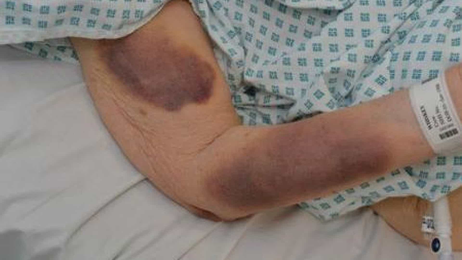 Idosa de 90 anos brutalmente atacada enquanto dormia