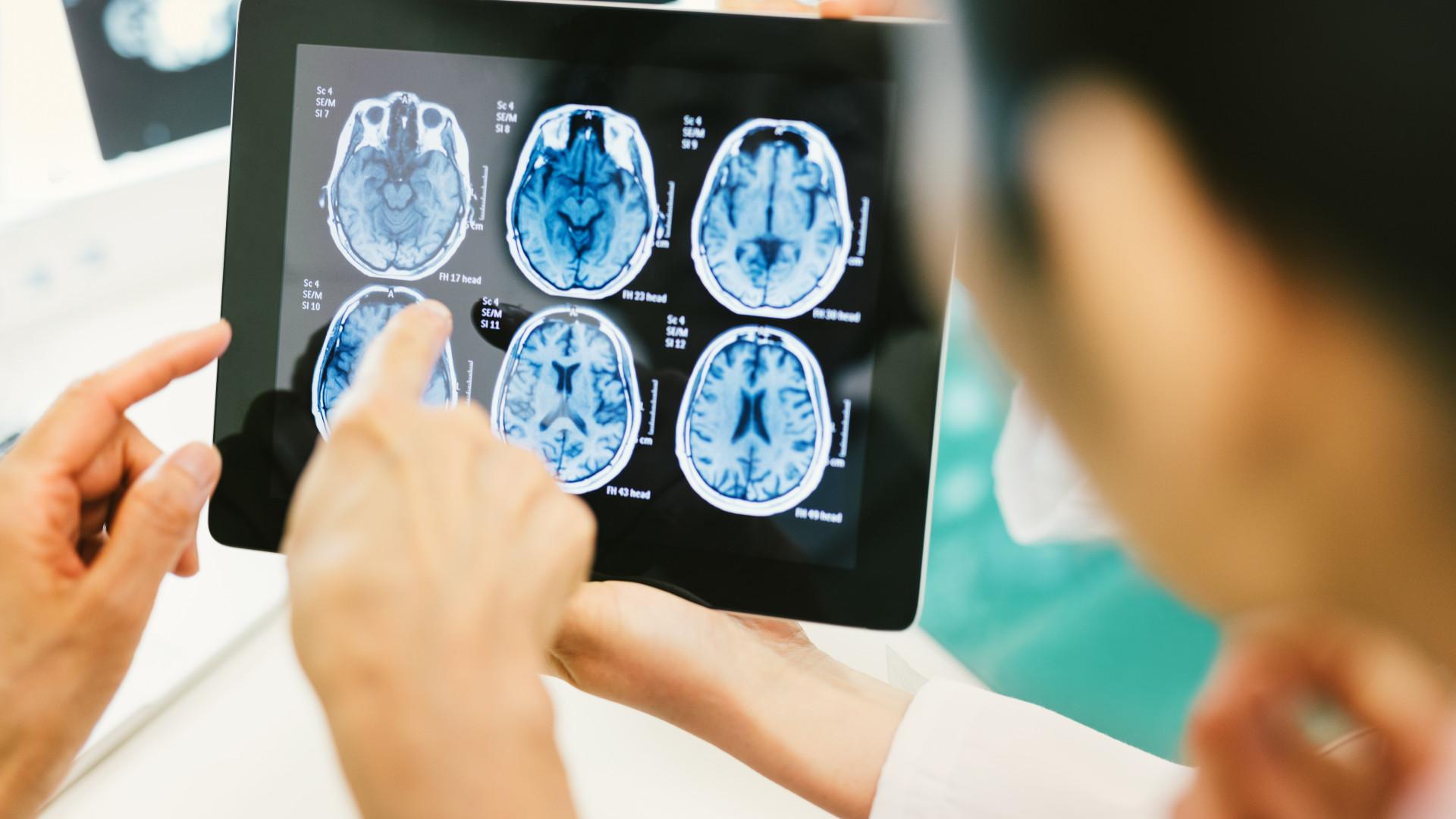 Investigadores descobrem mecanismo que controla tumor maligno no cérebro
