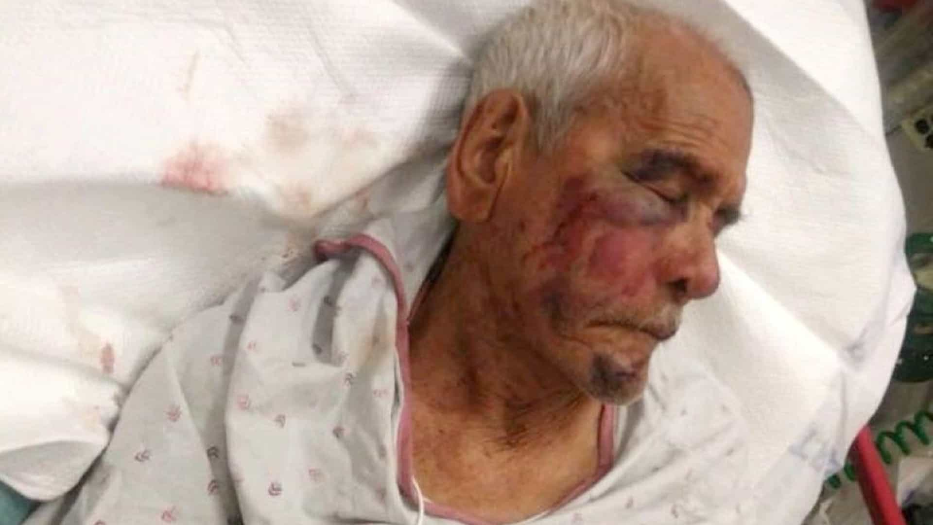 Mulher detida após atacar mexicano de 91 anos com tijolo na rua