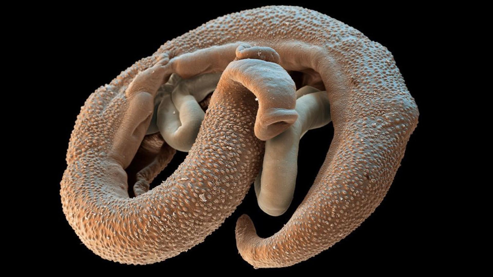 Esquistossomose: Conheça os sintomas desta doença parasitária letal