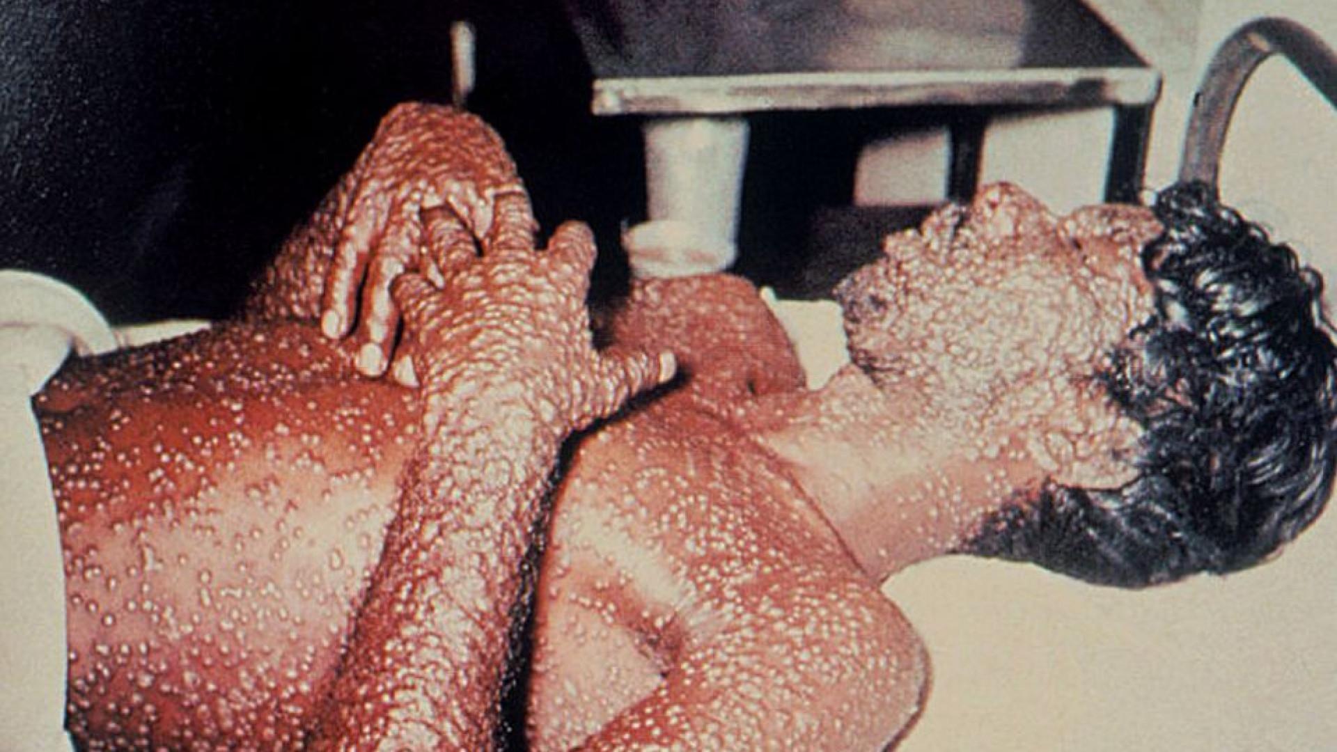 Varíola: O que é, quais os sintomas e o perigo atual de uma epidemia