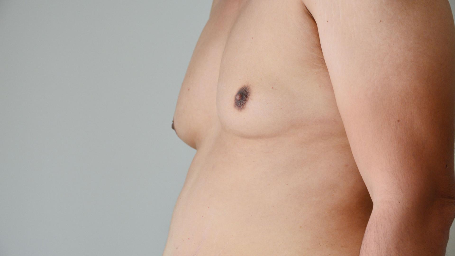 Homens. Cinco métodos fáceis para dizer adeus às 'man boobs'
