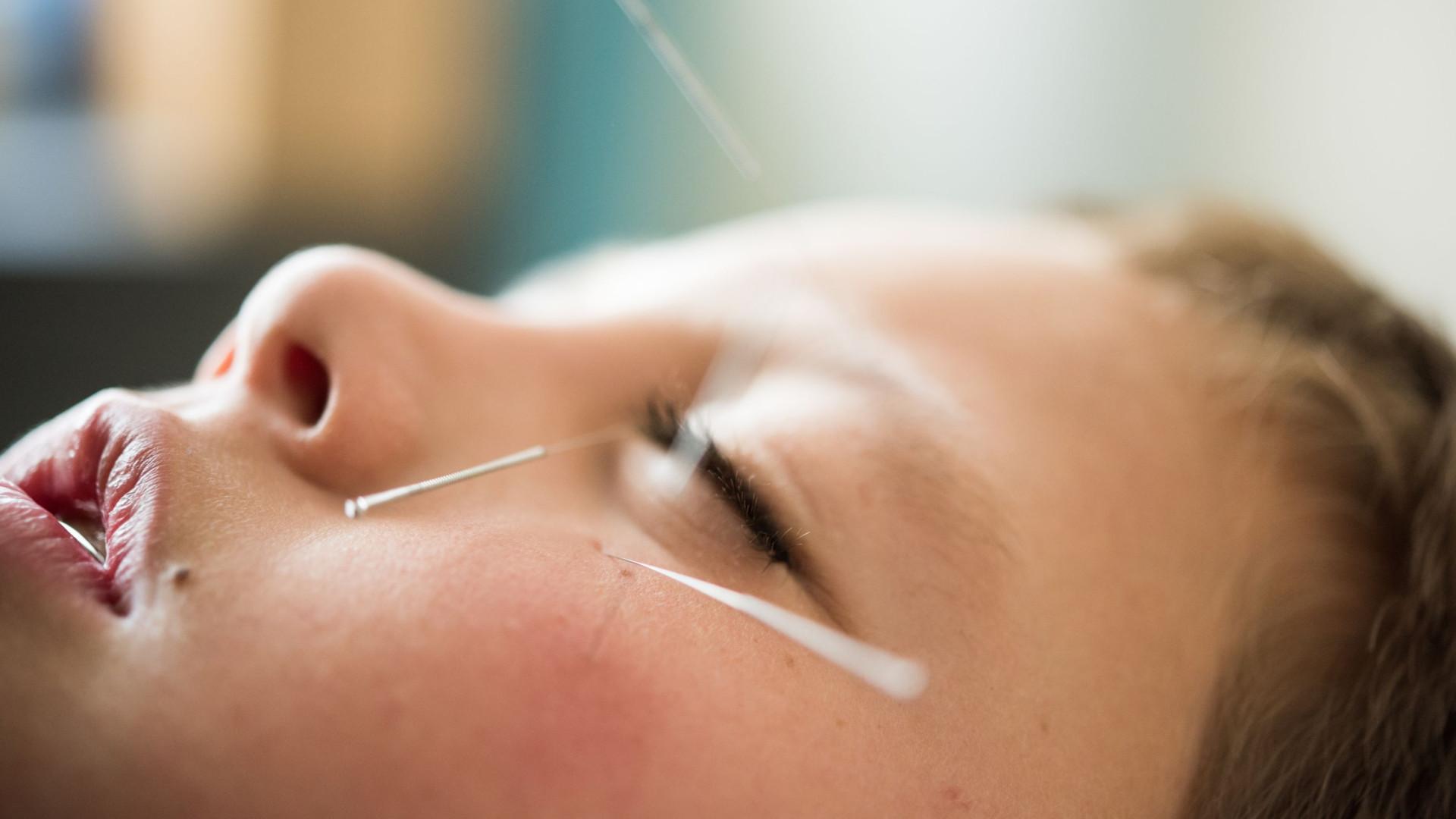 Descubra seis benefícios da acupuntura aplicada às crianças