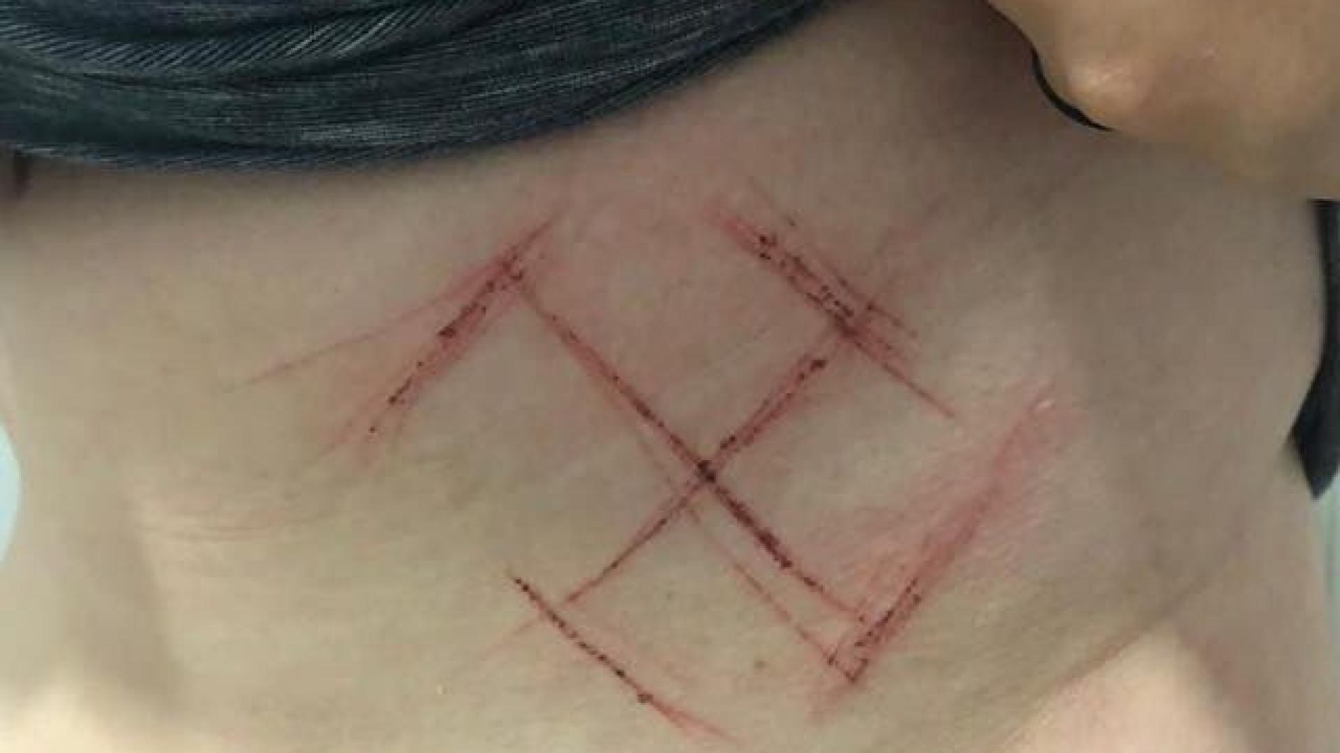 Três homens cravam suástica a canivete em jovem com camisola #EleNão