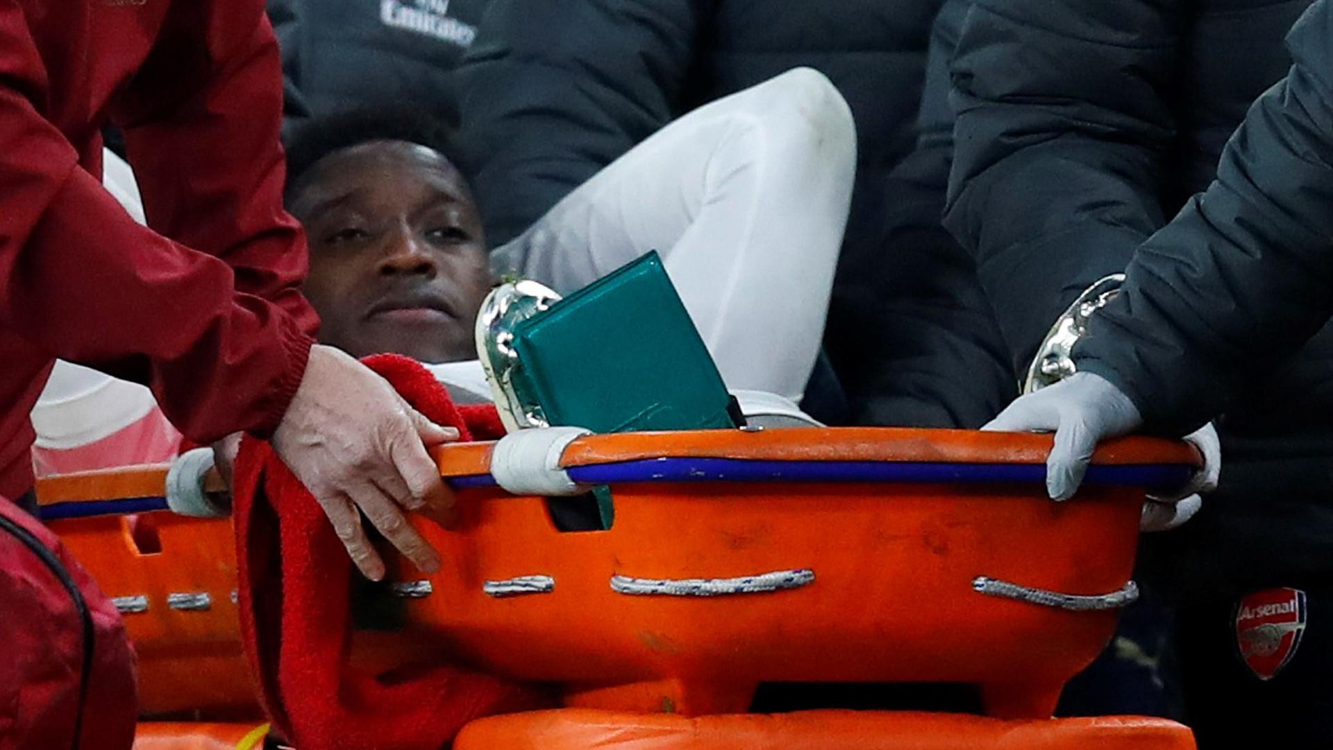 Welbeck continua hospitalizado depois de se ter lesionado com o Sporting