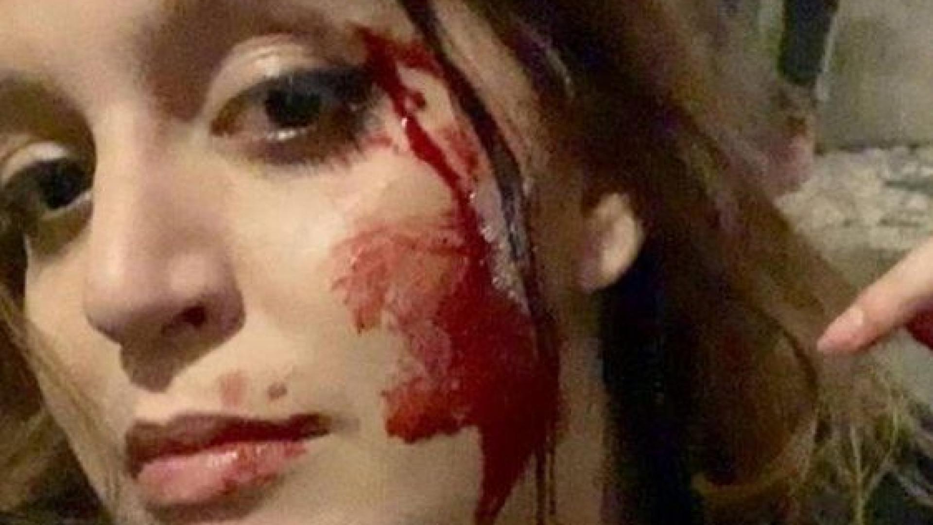 "Cidadã brasileira relata ter sido agredida em Lisboa. ""Impunidade"""