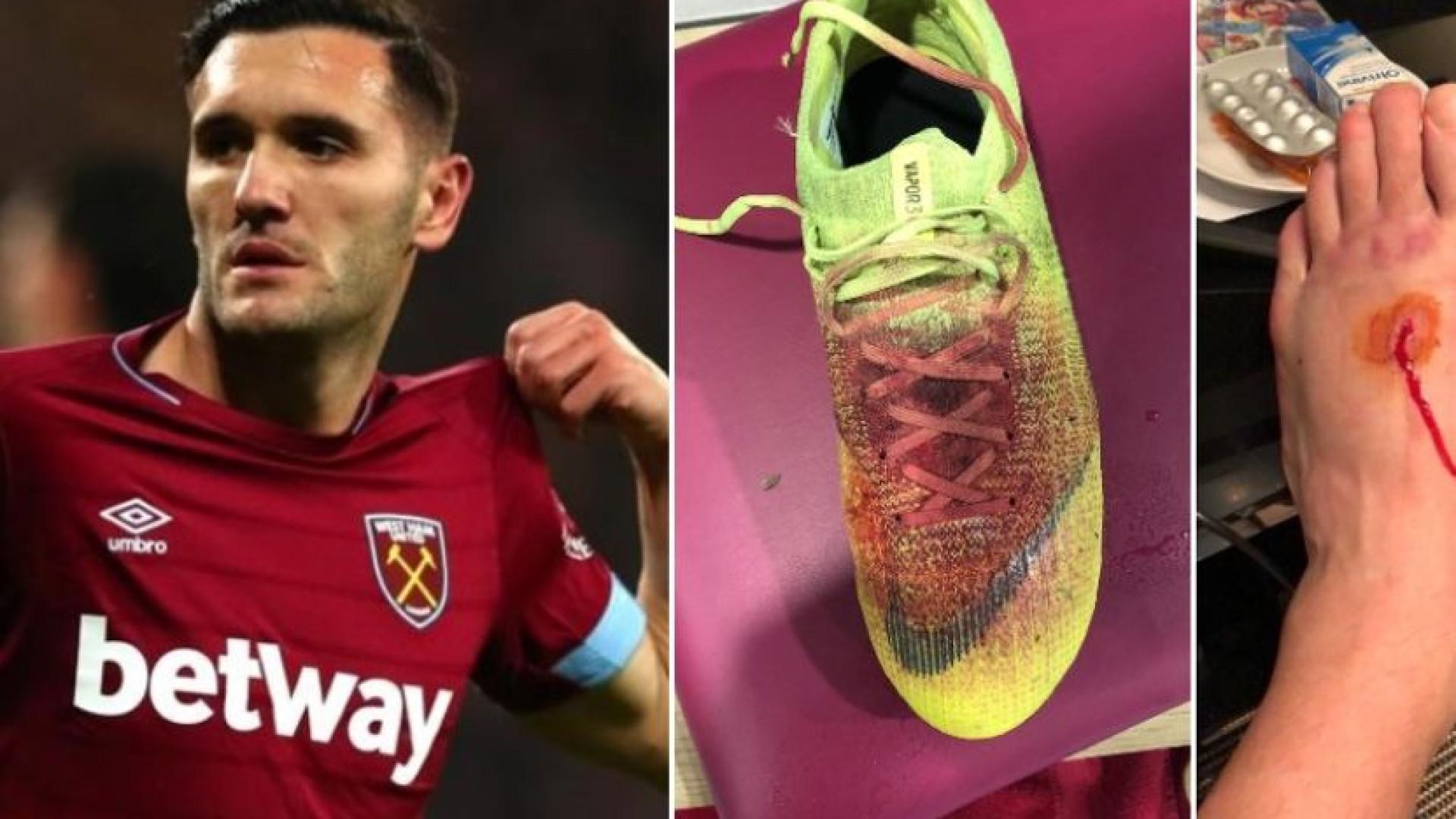 A arrepiante imagem do pé de Lucas Pérez após o jogo com o Palace