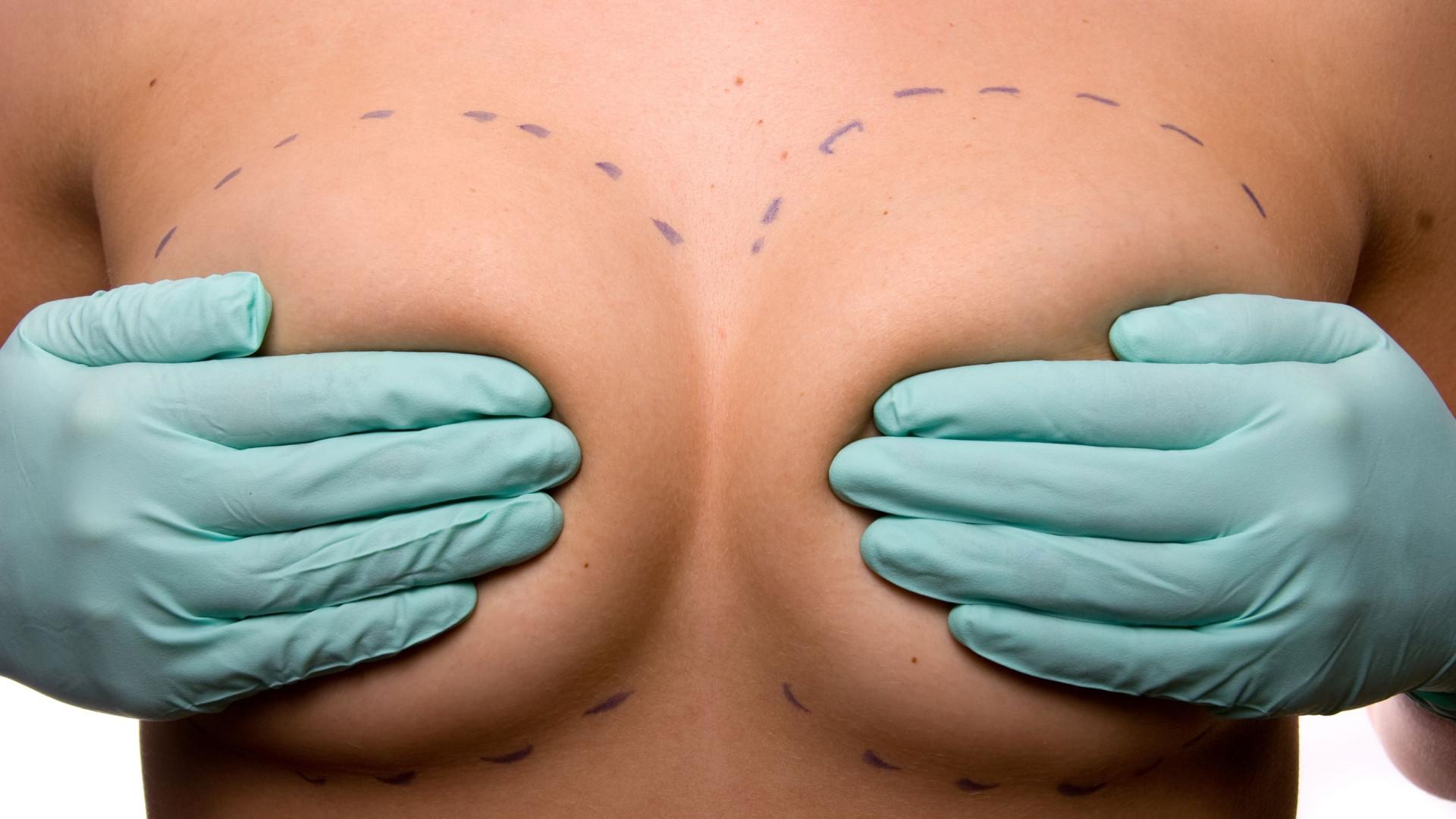 Será que provoca cancro da mama? Desvende 8 mitos sobre a mamoplastia