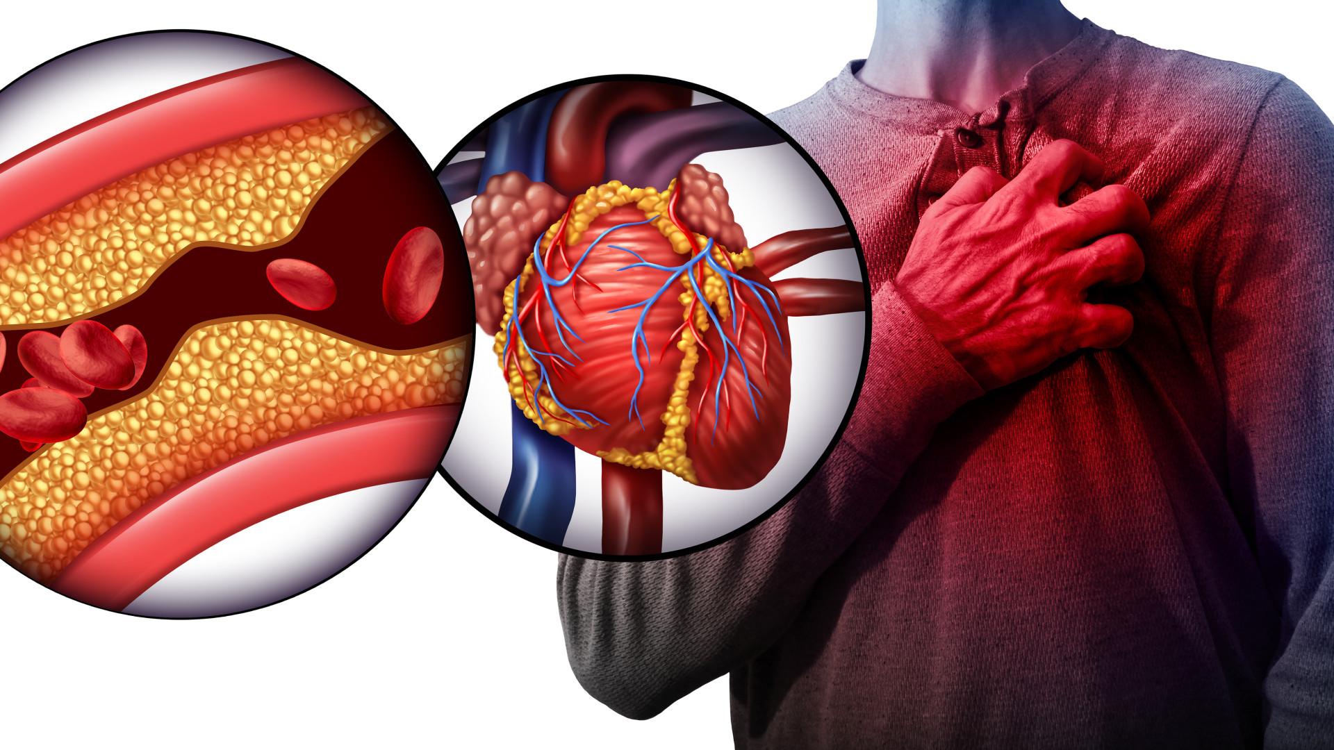 Estes são os níveis ideais e de alto risco de colesterol