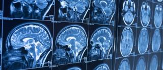 Proteína AP2gama estimula produção de novos neurónios