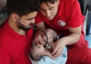 Gémeos siameses que nasceram na Síria há um mês não sobreviveram