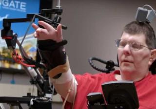 Tecnologia permite a tetraplégico mexer mão e braço