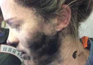 Apple recusa compensar mulher cujos headphones lhe explodiram na cara