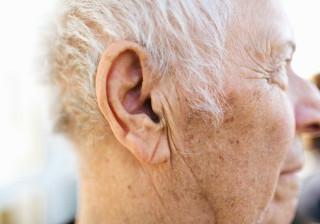 Estudo relaciona marca na orelha com maior risco de AVC