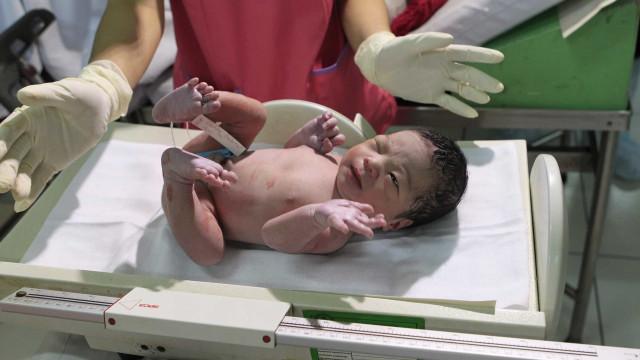 Quase 80 milhões de bebés não são amamentados na primeira hora após parto