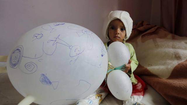 Cerca de 20 milhões de pessoas no Iémen estão famintas