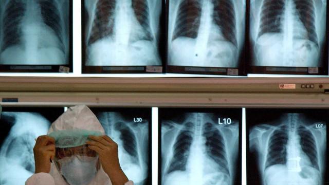 Transplantes pulmonares põem Portugal no top e fazem Rosa dançar
