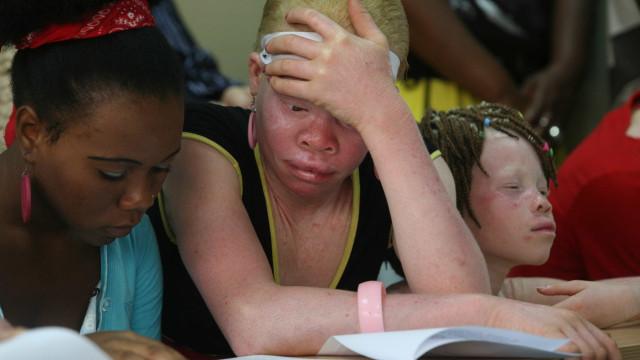 Treze pessoas detidas por profanação de cadáveres de albinos e calvos