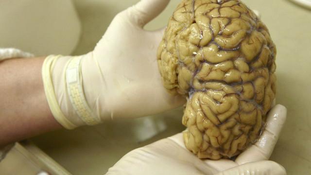 Formação de novas células cerebrais não prossegue ao longo da vida