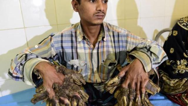Após operações, 'Homem Árvore' volta a ter verrugas a crescer nas mãos
