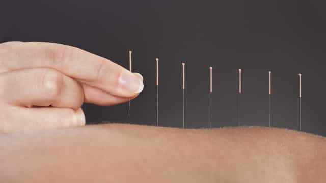 Acupuntura poderá ser tão eficaz como analgésicos a aliviar a dor