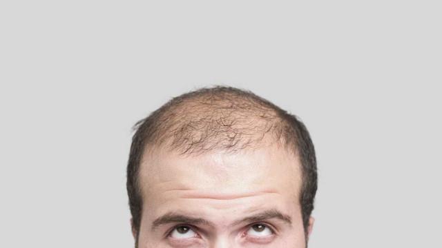 Cura da calvície à vista? Descoberta pode fazer o cabelo voltar a crescer