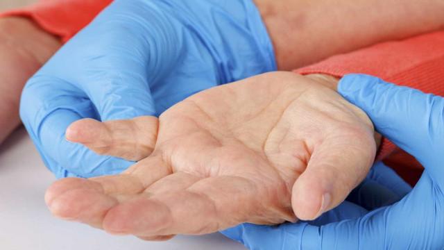 Defeitos neuronais explicam perturbações no sono em doentes de Parkinson