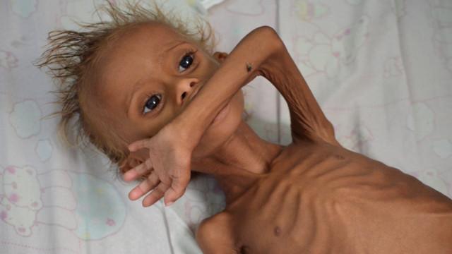 Ataques ao porto de Hodeida ameaçam de fome mais um milhão de crianças