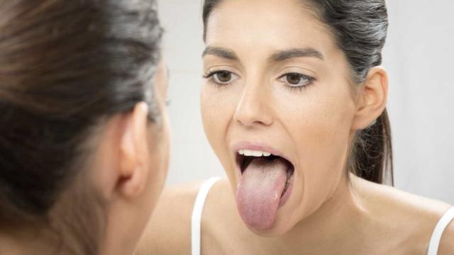 A doença bizarra conhecida como 'língua peluda'