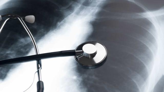 """Novo dispositivo móvel é capaz de """"ver"""" fluidos nos pulmões de doentes"""